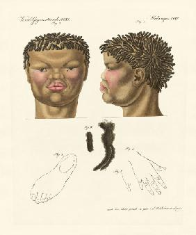 The hottentot or bushman