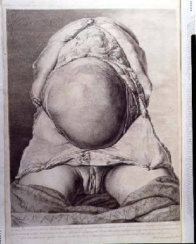 Anatomical drawing of the abdomen of a pregnant female human with skin peeled back
